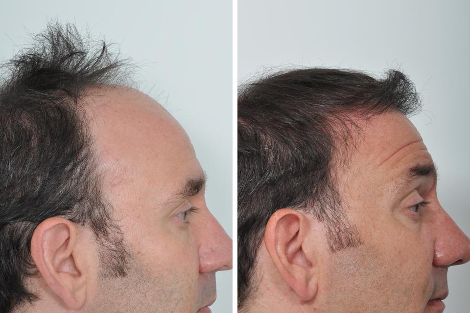 best hair transplant in chandigarh