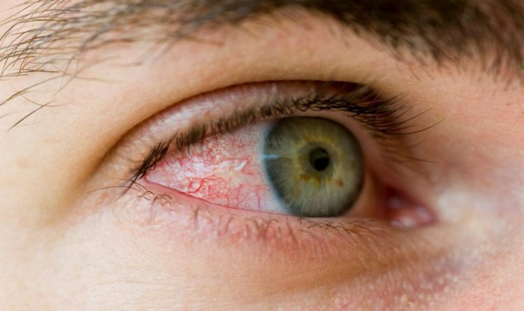 Top Home Remedies For Red Eyes