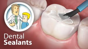 6 Reasons Dental Sealants are a Good Idea for your Teeth 2