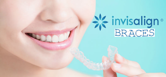 Invisalign Braces – How the Latest Adult Braces Can Help You Smile Better