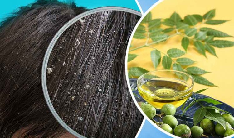 oil for dandruff and hair fall