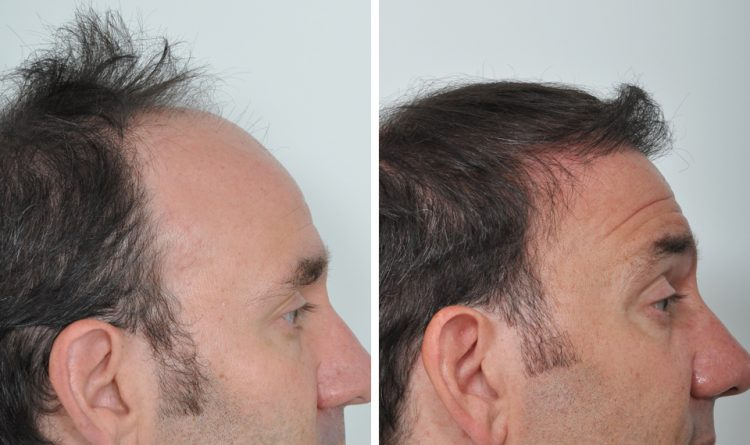 best hair transplant in chandigarh