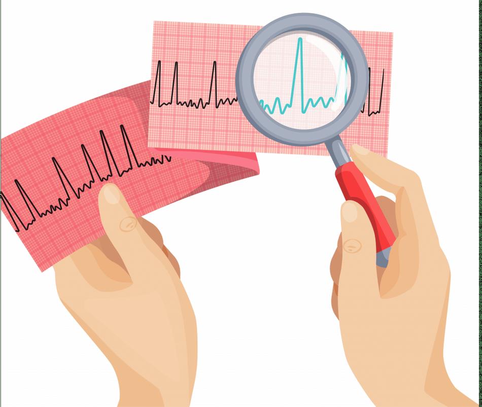 atrial fibrillation symptoms
